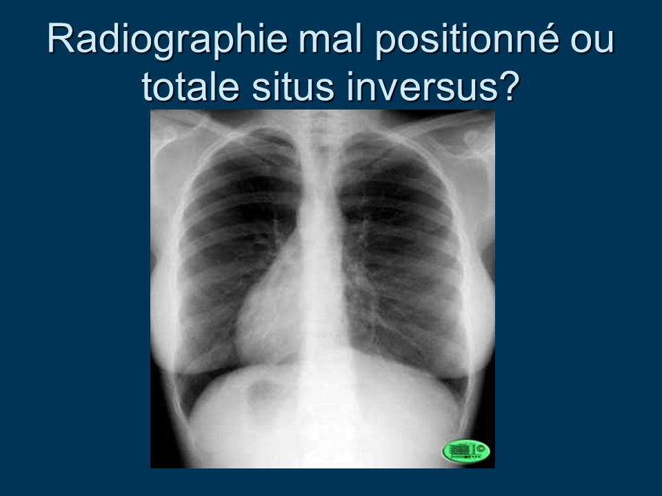 Radiographie mal positionné ou totale situs inversus