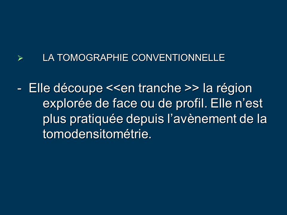 LA TOMOGRAPHIE CONVENTIONNELLE