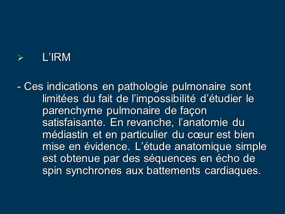 L'IRM