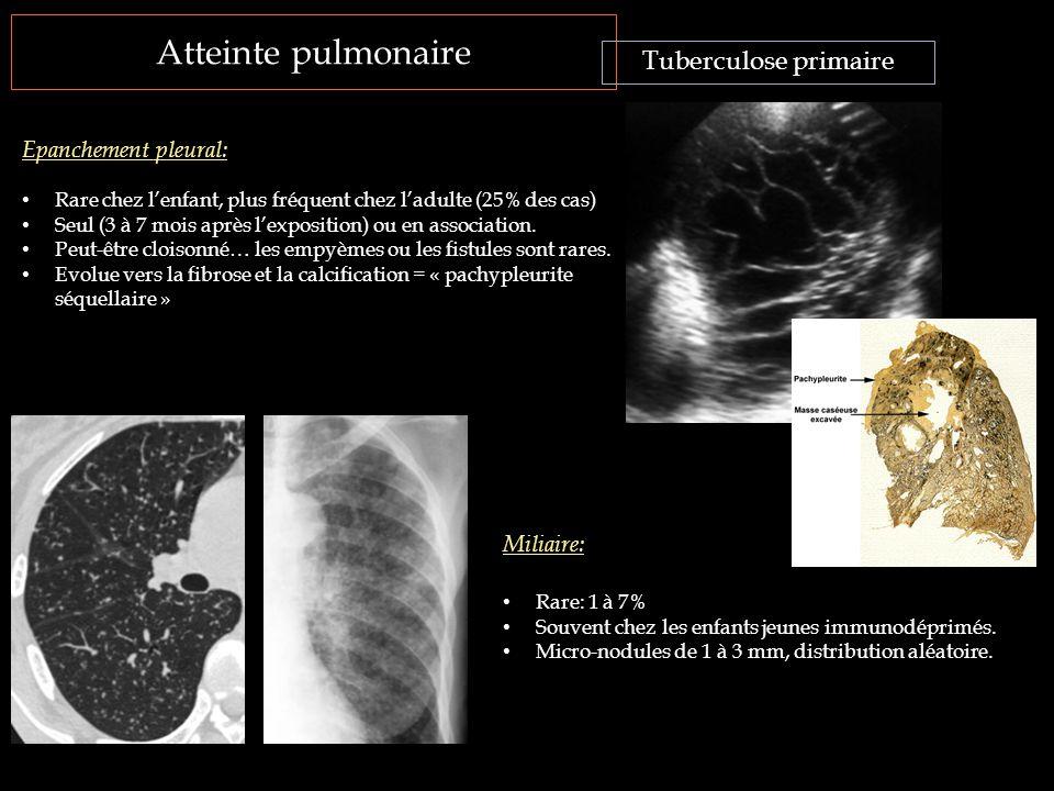 Atteinte pulmonaire Tuberculose primaire Epanchement pleural: