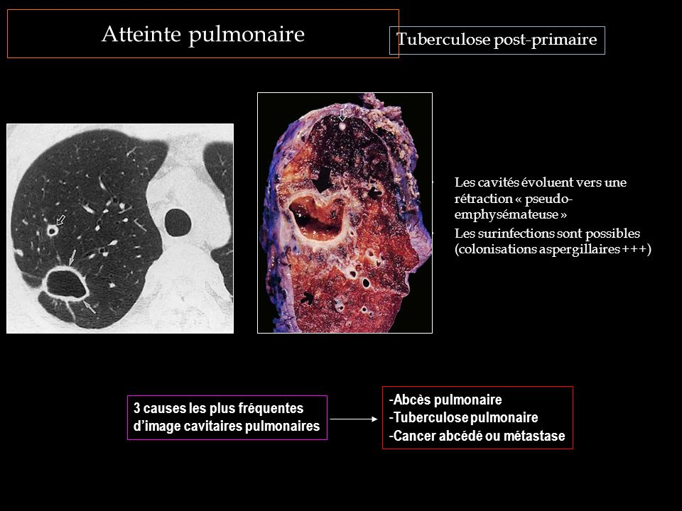 Tuberculose post-primaire
