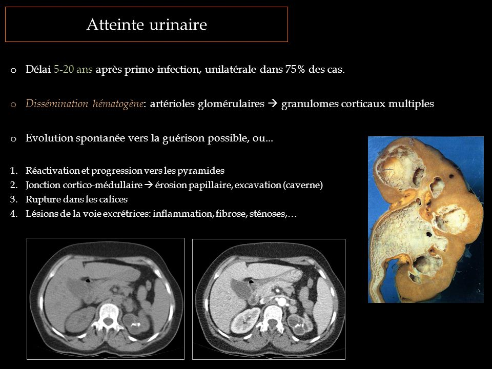 Atteinte urinaire Délai 5-20 ans après primo infection, unilatérale dans 75% des cas.