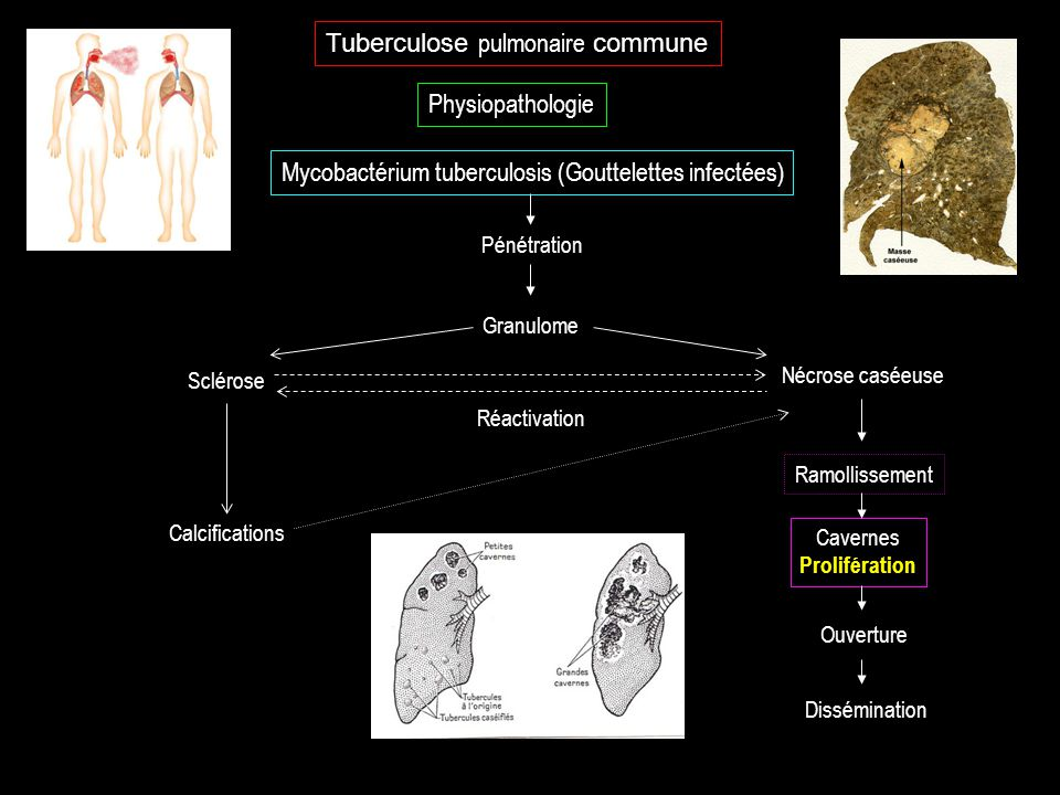 Tuberculose pulmonaire commune