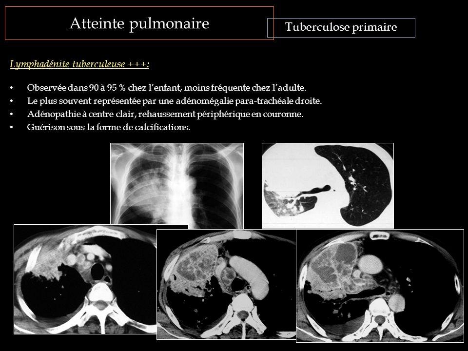 Atteinte pulmonaire Tuberculose primaire
