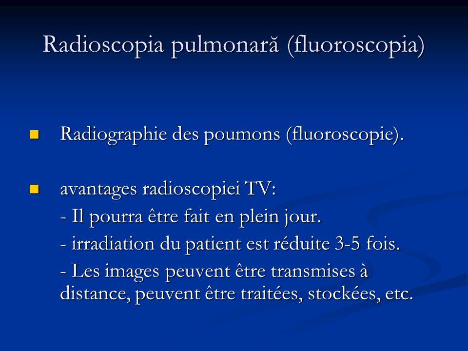 Radioscopia pulmonară (fluoroscopia)