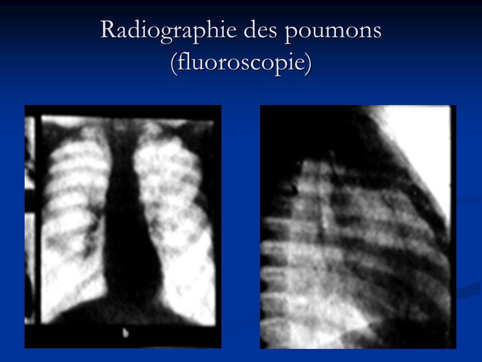 Radiographie des poumons (fluoroscopie)