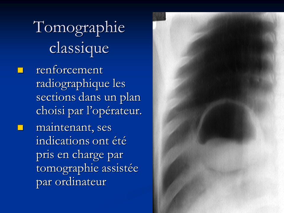 Tomographie classique