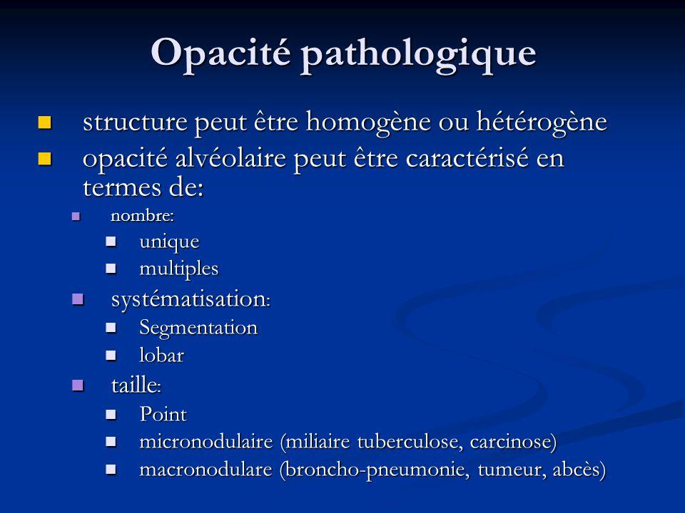 Opacité pathologique structure peut être homogène ou hétérogène