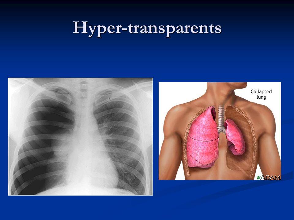 Hyper-transparents