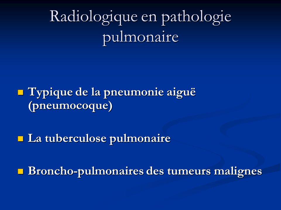 Radiologique en pathologie pulmonaire