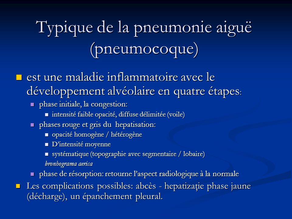 Typique de la pneumonie aiguë (pneumocoque)
