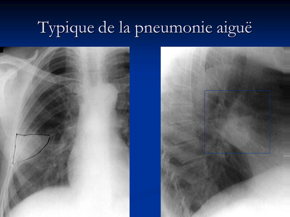 Typique de la pneumonie aiguë