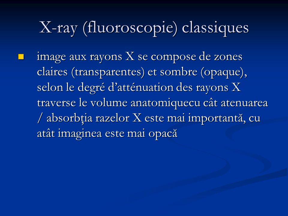 X-ray (fluoroscopie) classiques