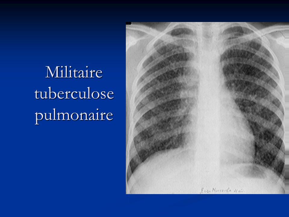 Militaire tuberculose pulmonaire