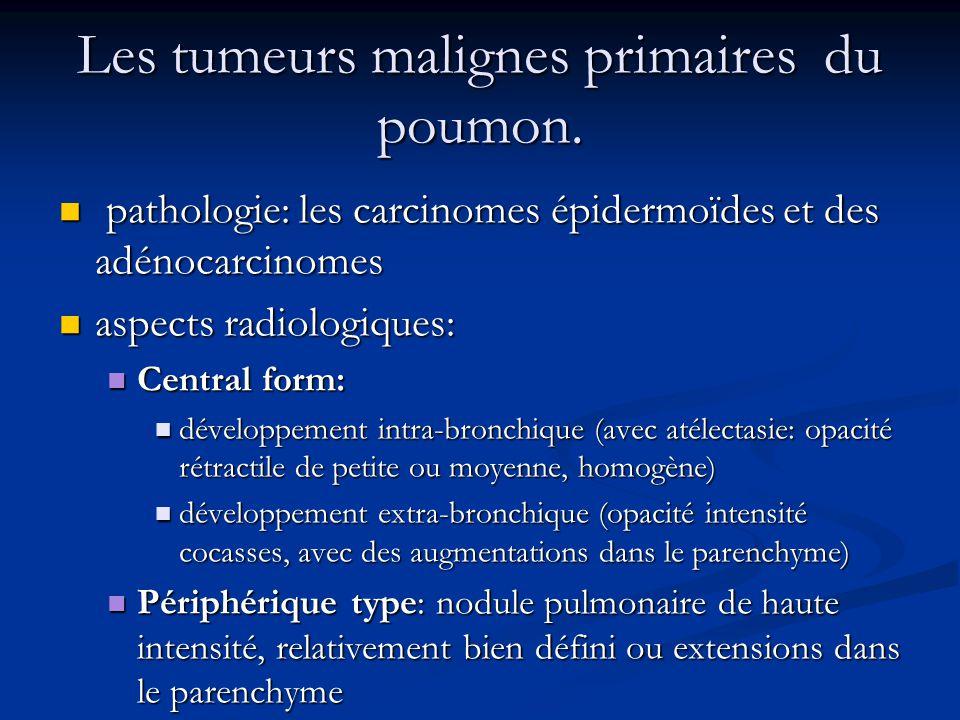 Les tumeurs malignes primaires du poumon.