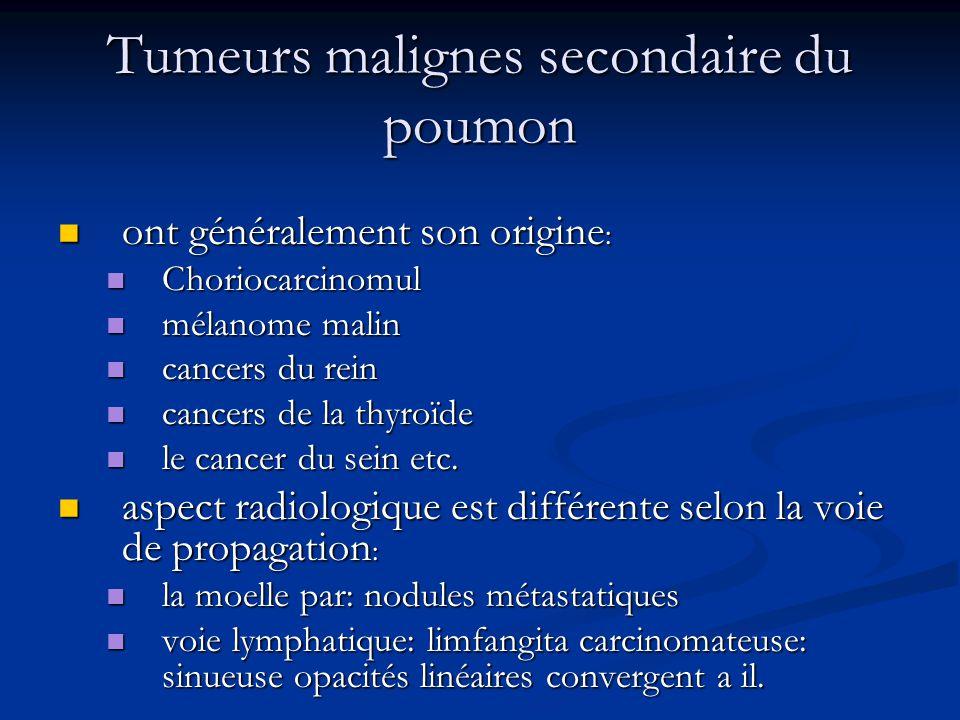 Tumeurs malignes secondaire du poumon