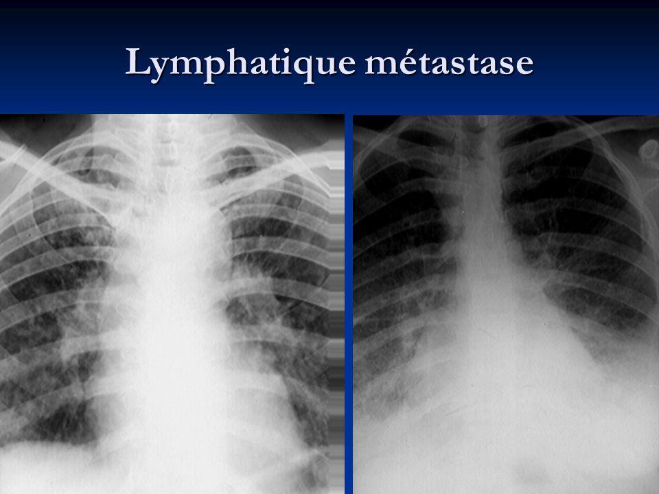 Lymphatique métastase