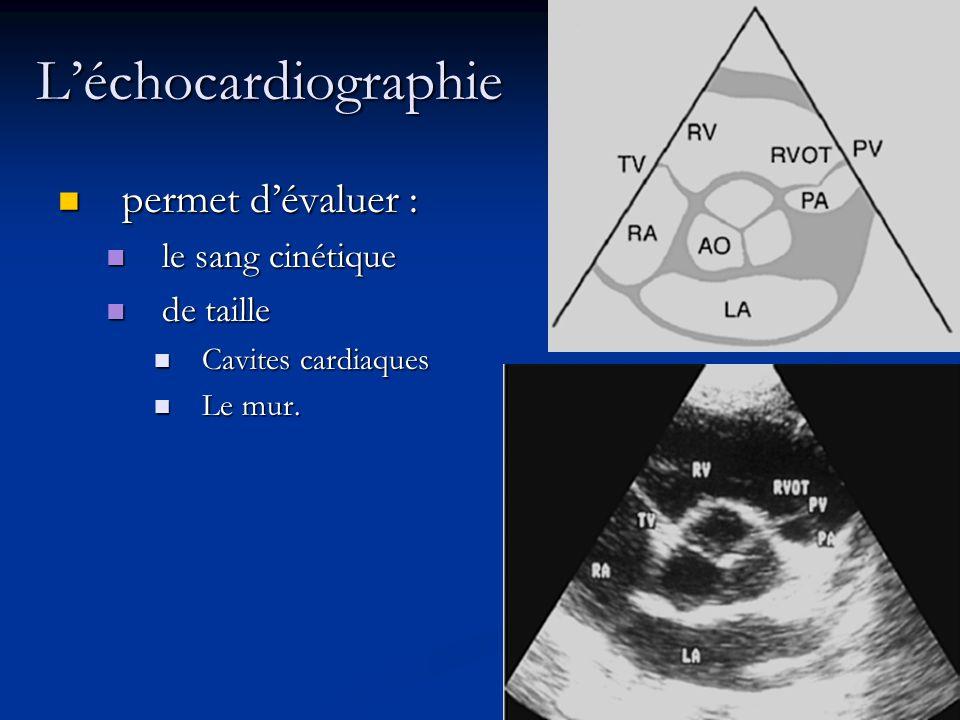 L'échocardiographie permet d'évaluer : le sang cinétique de taille