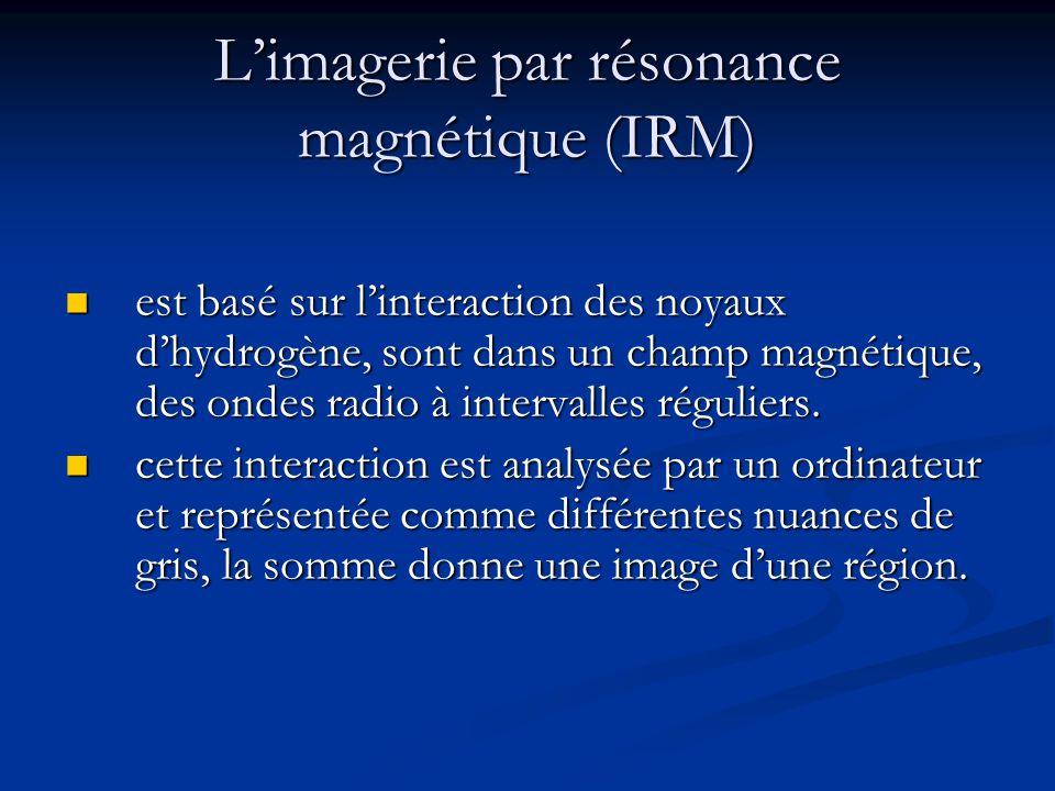 L'imagerie par résonance magnétique (IRM)