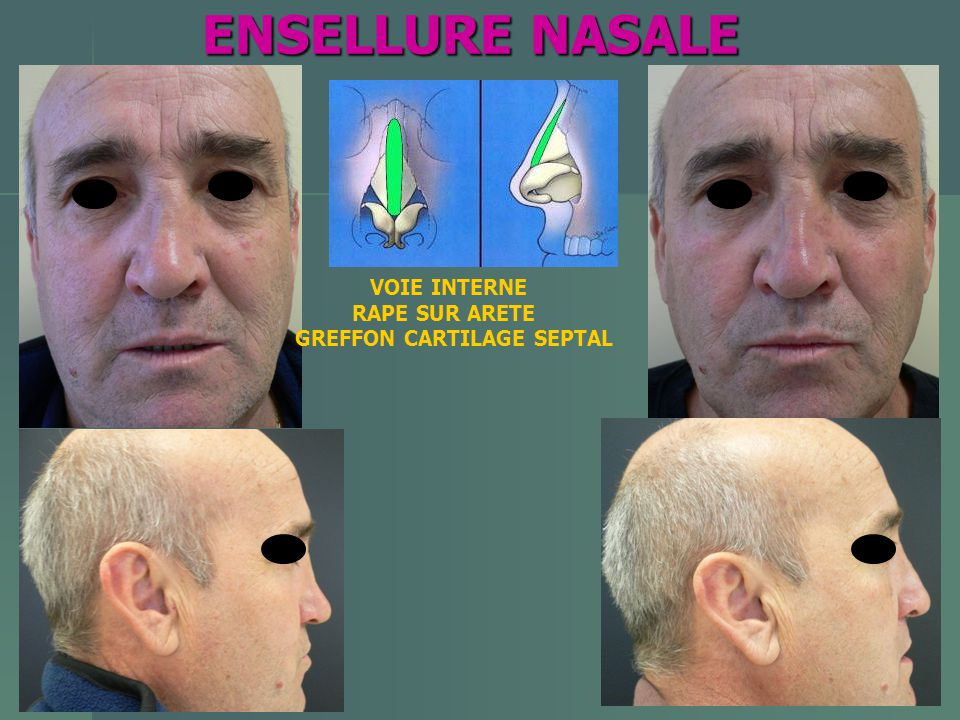 ENSELLURE NASALE VOIE INTERNE RAPE SUR ARETE GREFFON CARTILAGE SEPTAL