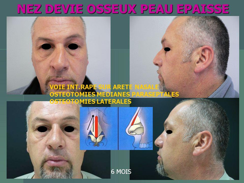 NEZ DEVIE OSSEUX PEAU EPAISSE