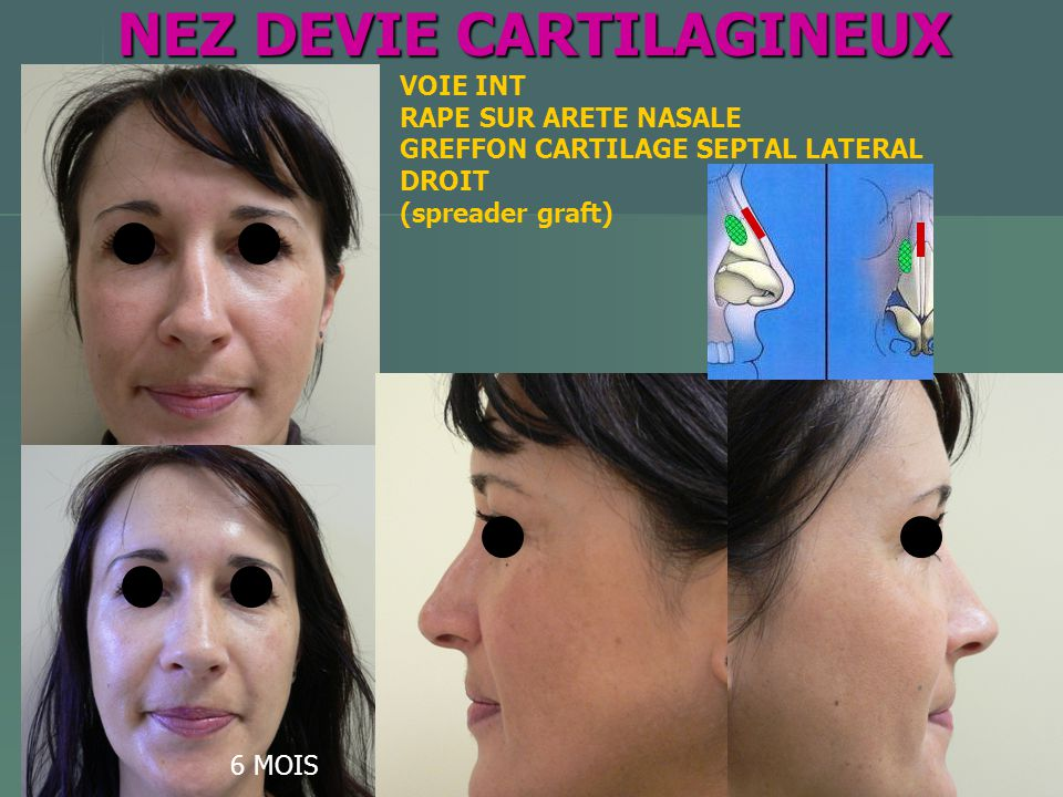 NEZ DEVIE CARTILAGINEUX