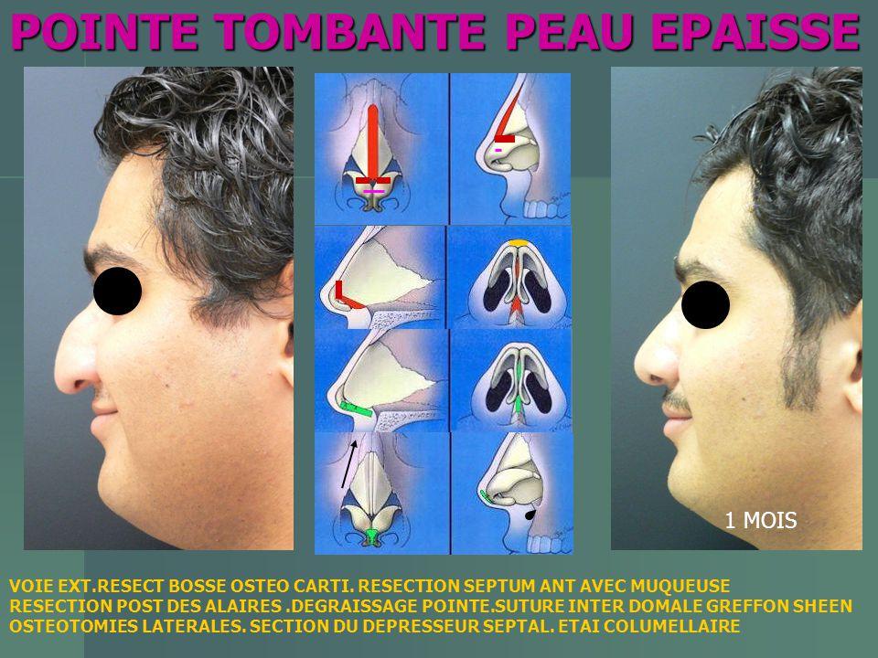 POINTE TOMBANTE PEAU EPAISSE