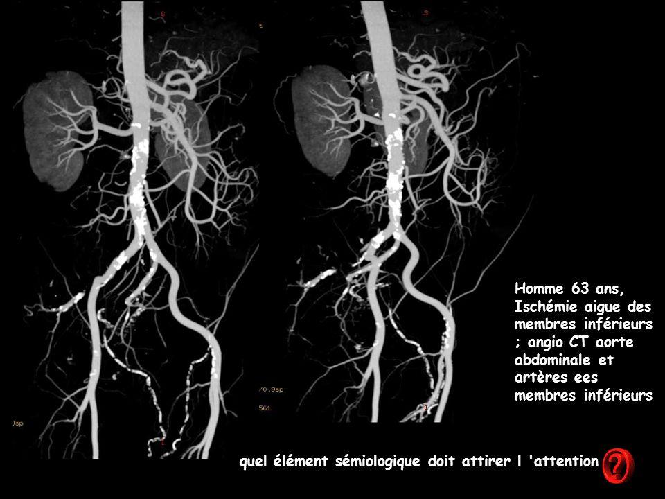 Homme 63 ans, Ischémie aigue des membres inférieurs ; angio CT aorte abdominale et artères ees membres inférieurs