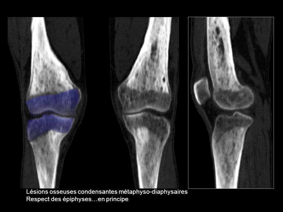 Lésions osseuses condensantes métaphyso-diaphysaires
