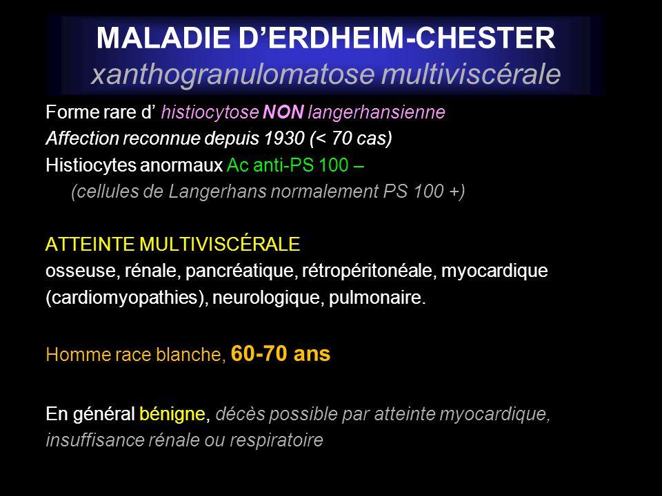 MALADIE D'ERDHEIM-CHESTER xanthogranulomatose multiviscérale
