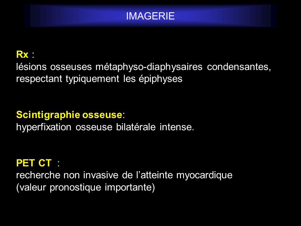 IMAGERIE Rx : lésions osseuses métaphyso-diaphysaires condensantes, respectant typiquement les épiphyses.