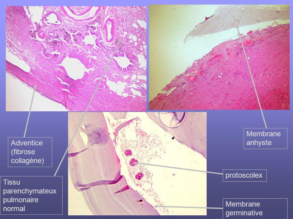 Membrane anhyste Adventice. (fibrose collagène) protoscolex. Tissu parenchymateux pulmonaire normal.