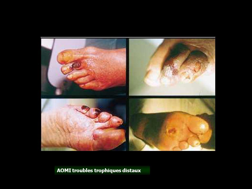 AOMI troubles trophiques distaux
