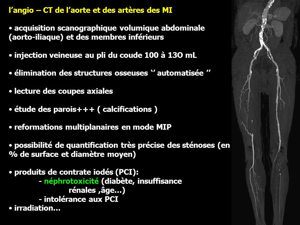 l'angio – CT de l'aorte et des artères des MI