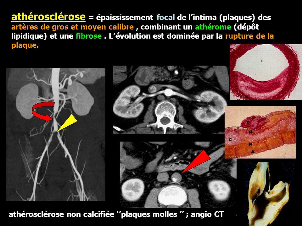 athérosclérose = épaississement focal de l'intima (plaques) des artères de gros et moyen calibre , combinant un athérome (dépôt lipidique) et une fibrose . L'évolution est dominée par la rupture de la plaque.