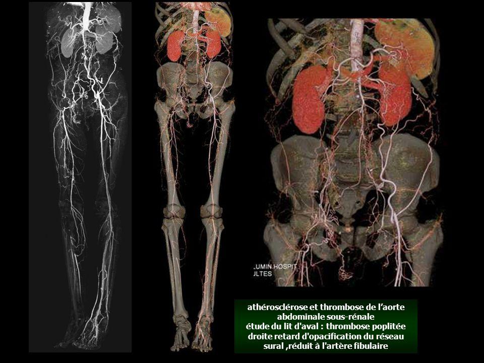 athérosclérose et thrombose de l'aorte abdominale sous-rénale