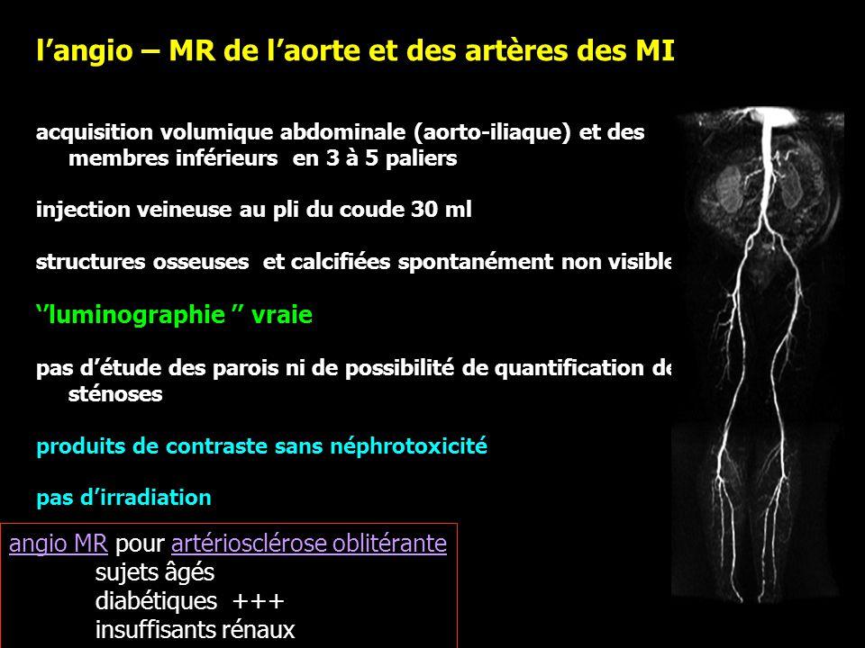 l'angio – MR de l'aorte et des artères des MI
