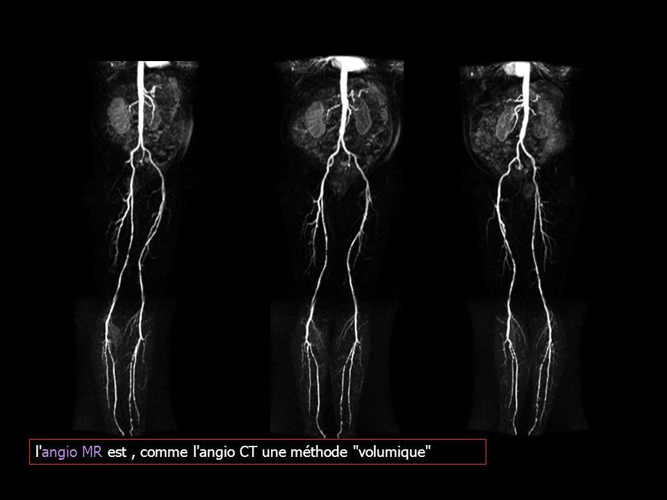 l angio MR est , comme l angio CT une méthode volumique