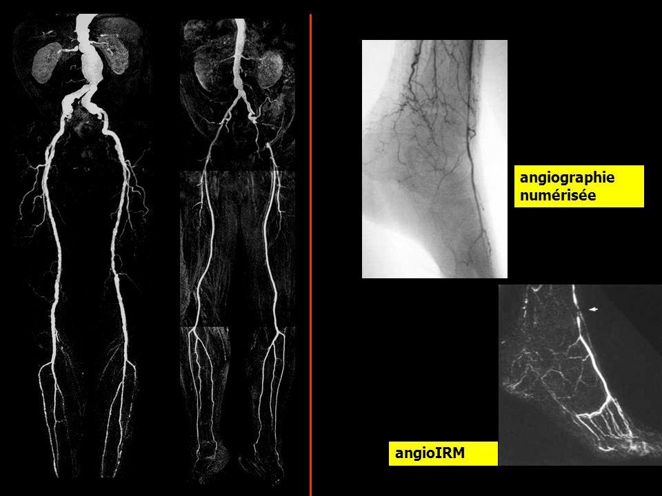 angiographie numérisée