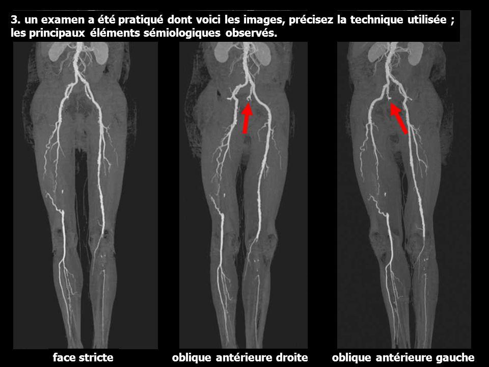 3. un examen a été pratiqué dont voici les images, précisez la technique utilisée ; les principaux éléments sémiologiques observés.