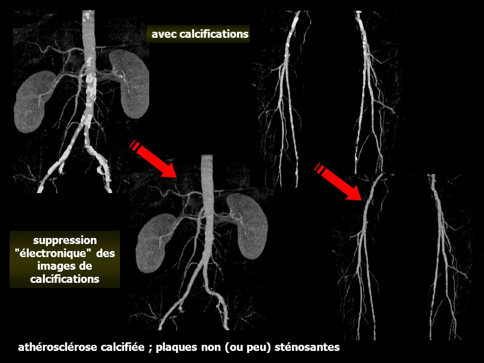 suppression électronique des images de calcifications