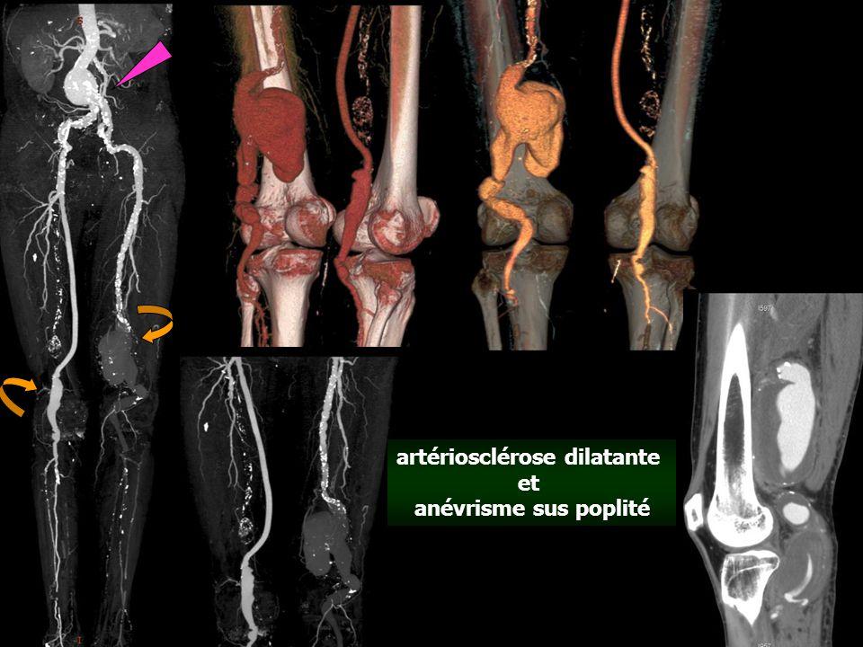 artériosclérose dilatante