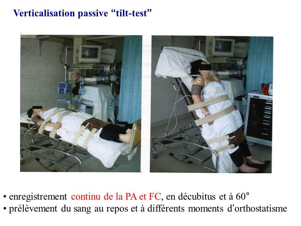 Verticalisation passive tilt-test