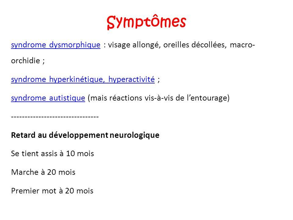 Symptômes syndrome dysmorphique : visage allongé, oreilles décollées, macro- orchidie ; syndrome hyperkinétique, hyperactivité ;