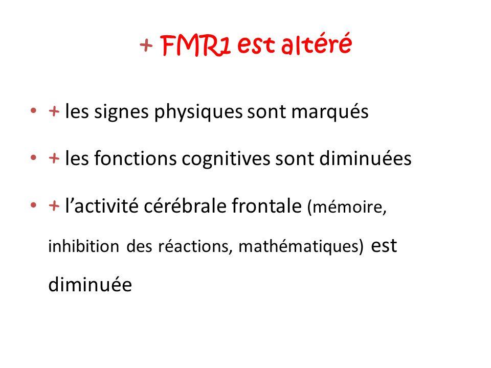 + FMR1 est altéré + les signes physiques sont marqués