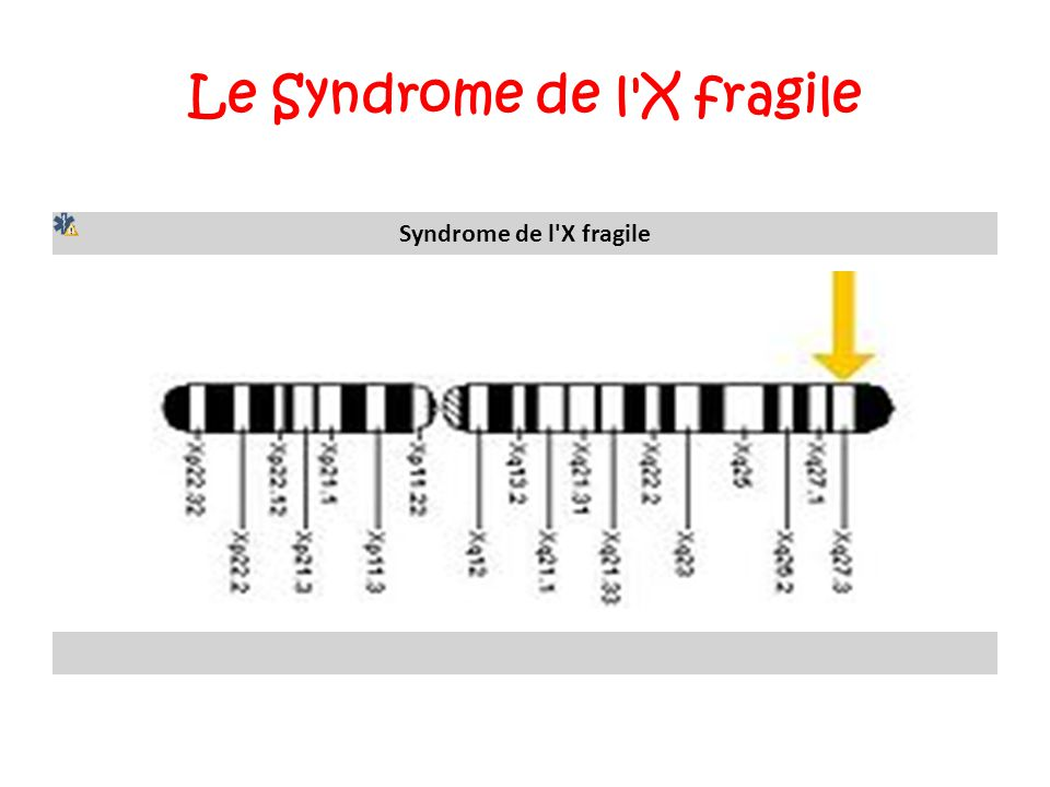Le Syndrome de l X fragile