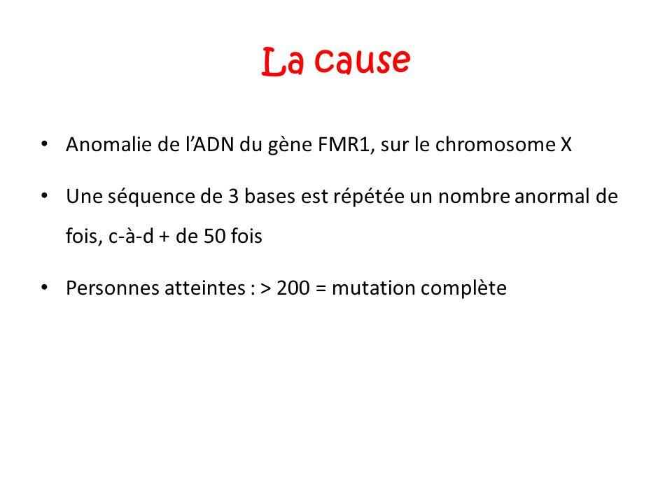 La cause Anomalie de l'ADN du gène FMR1, sur le chromosome X