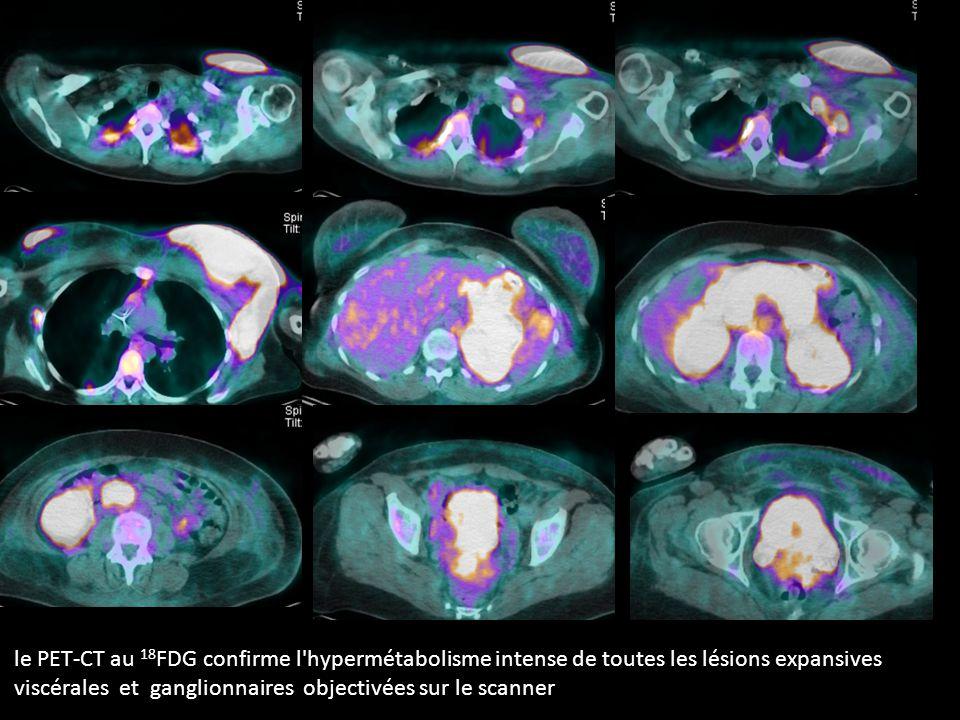 le PET-CT au 18FDG confirme l hypermétabolisme intense de toutes les lésions expansives viscérales et ganglionnaires objectivées sur le scanner