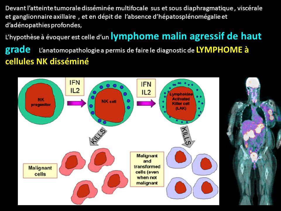 Devant l'atteinte tumorale disséminée multifocale sus et sous diaphragmatique , viscérale et ganglionnaire axillaire , et en dépit de l'absence d'hépatosplénomégalie et d'adénopathies profondes,