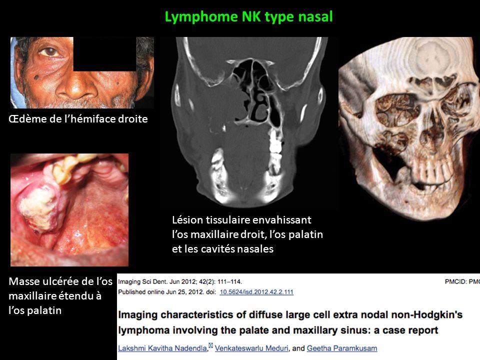 Lymphome NK type nasal Œdème de l'hémiface droite